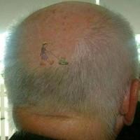 skinhead1