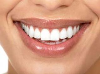 Truke natyrale për dhëmbë të bardhë Dhembet