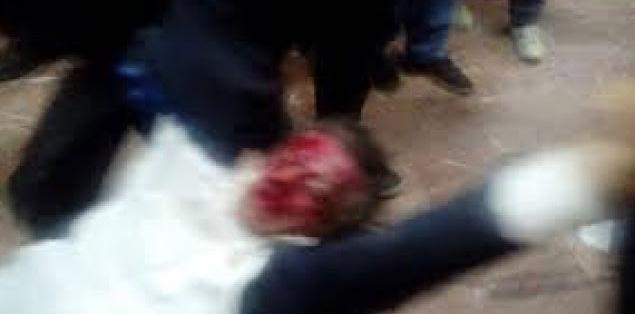 Photo of Dalin pamjet tmerruese nga rrahja e Ziadin Selës (Video)